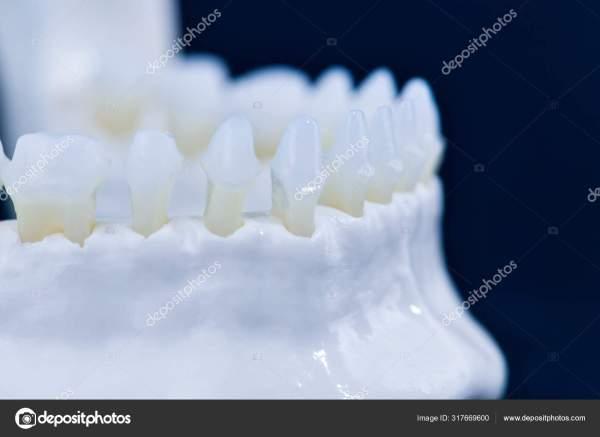 Модель нижней челюсти человека с анатомией зубов ...