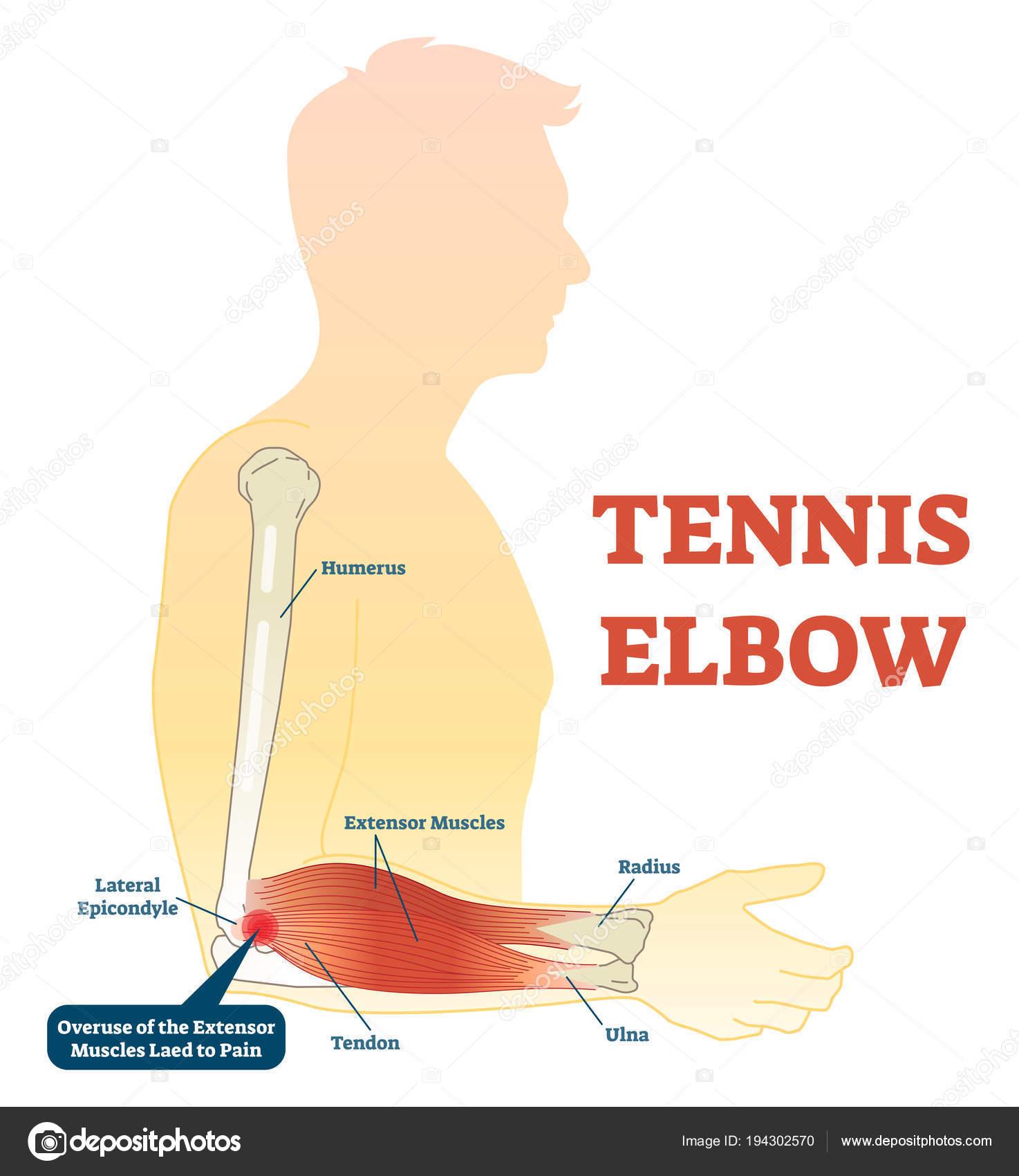 Diagrama De Ilustracion Vectorial De Codo De Tenista