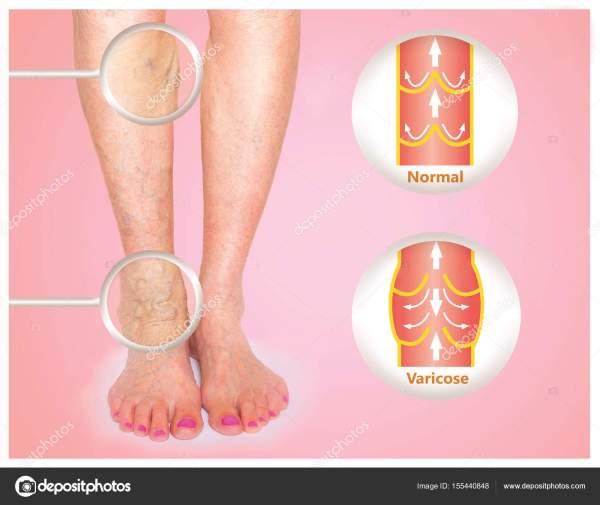 Варикозные вены на старшей ноге женщины — Стоковое фото ...