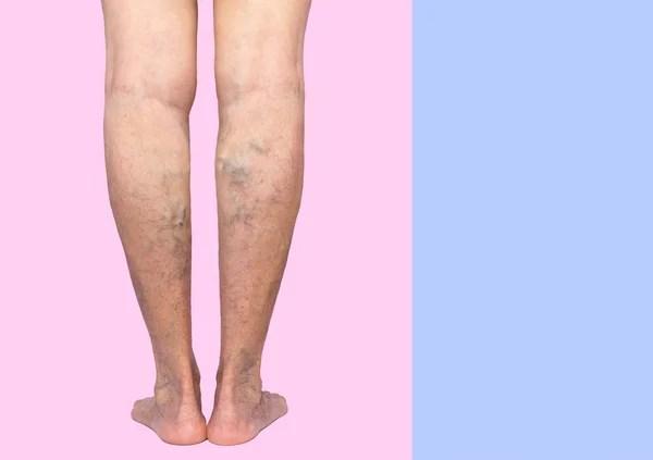 Варикозные вены на женских ногах — Стоковое фото ...