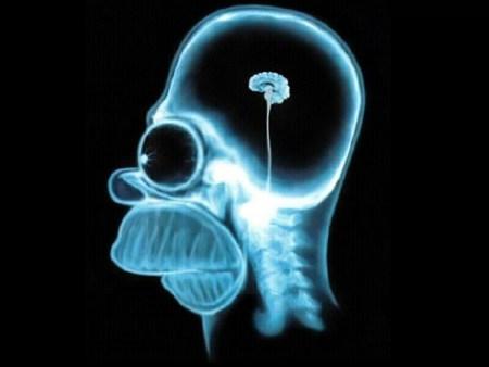 Cerveau_Homer