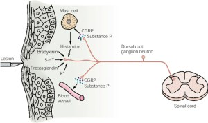 A diagram showing the process at the heart of neurogenic inflammation in the body.