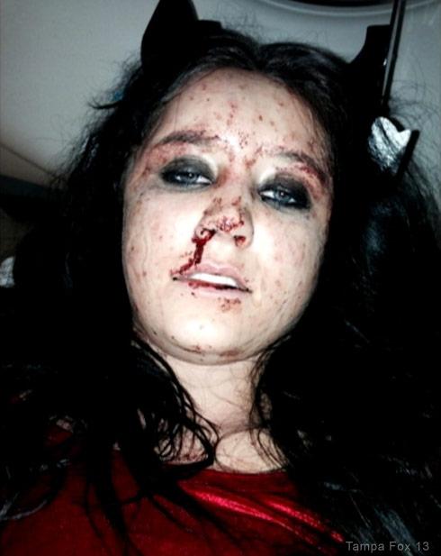 https://i1.wp.com/starcasm.net/wp-content/uploads/2014/09/Alisha_Hessler_injuries.jpg