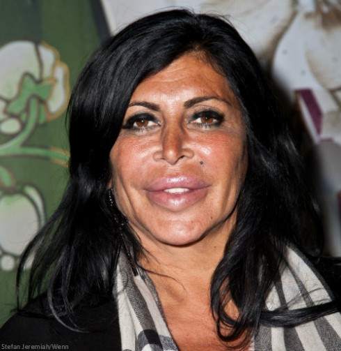 Does Mob Wives Big Ang Have Cancer Throat Tumor Prognosis