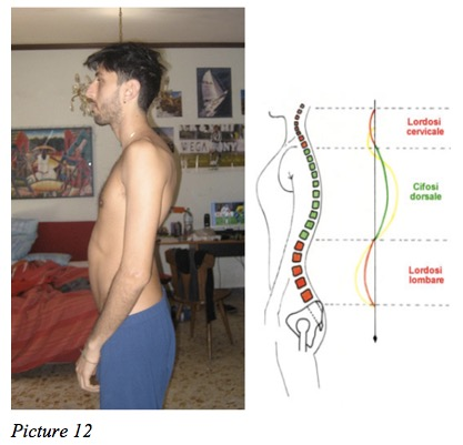 spine asymmetry