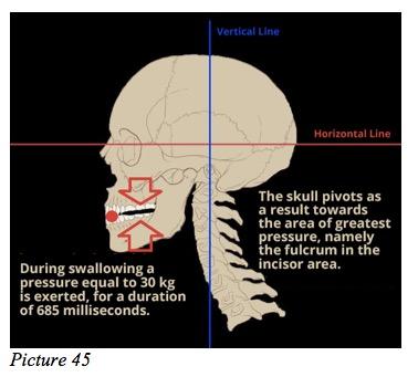 dental pression fulcrum