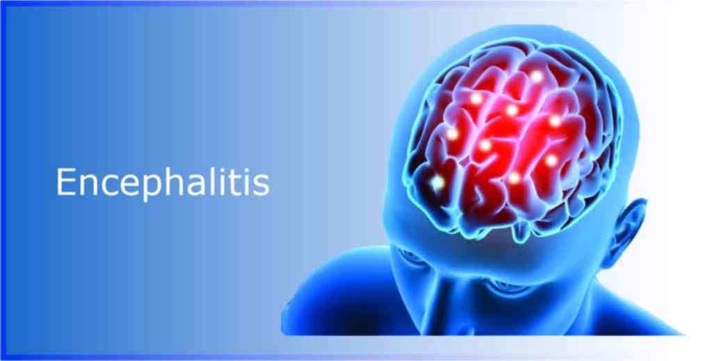 coronavirus encephalitis