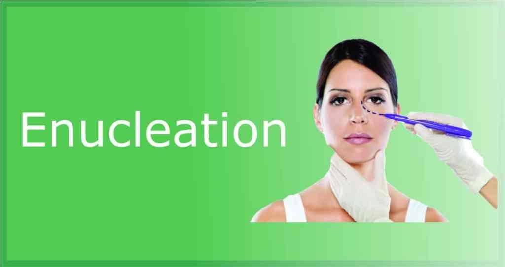 enucleation of eye