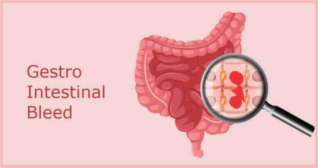Gestro Intestinal Bleed