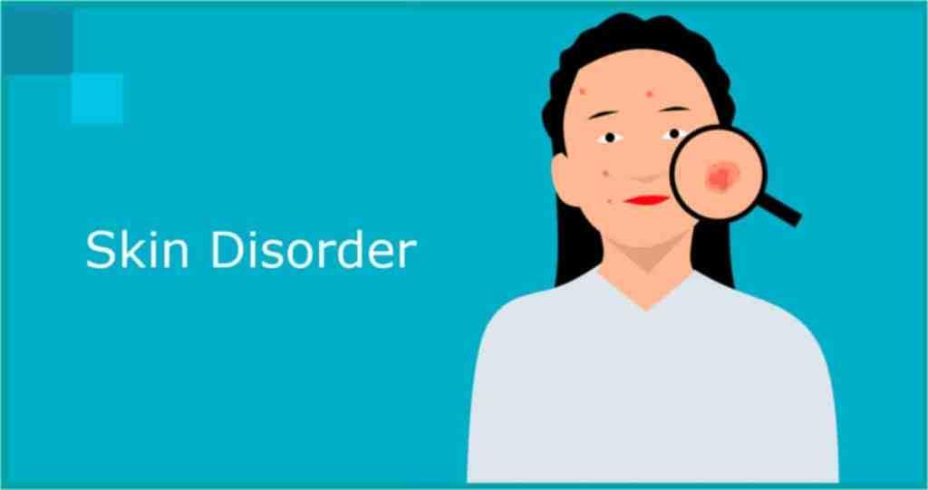 drug induced skin disorders