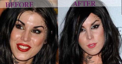 Celebrity Kat Von D Plastic Surgery Photos Video
