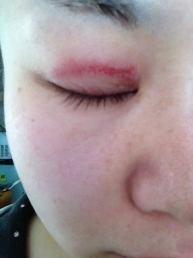 「アイプチ 腫れた」の画像検索結果