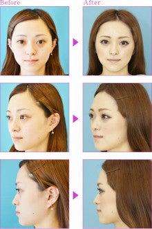 美容整形・美容皮膚科の知恵袋