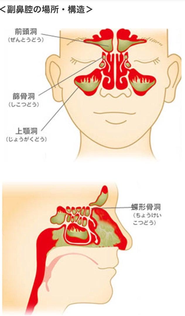 上顎洞炎と副鼻腔炎 | sakeyohanaのブログ