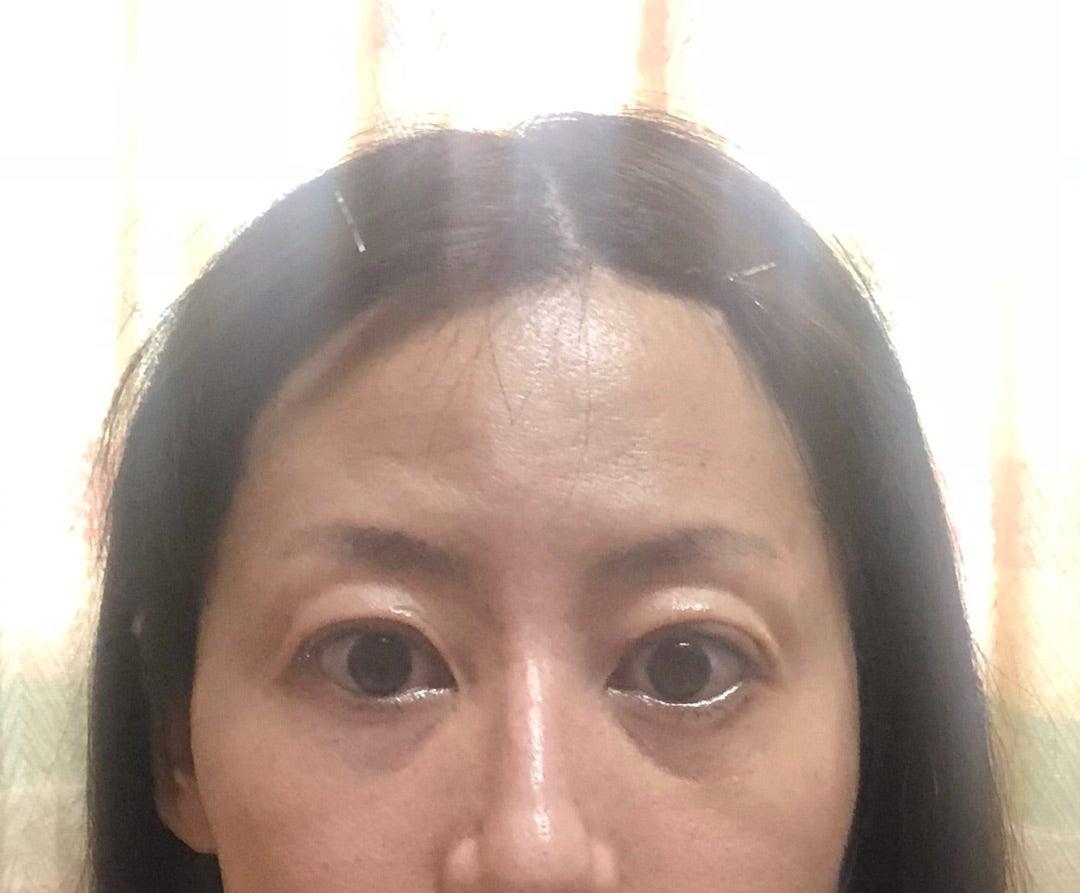 経過報告:手術後1日目~10日目 | バセドウ病・甲狀腺眼癥日記 〜新裝版〜