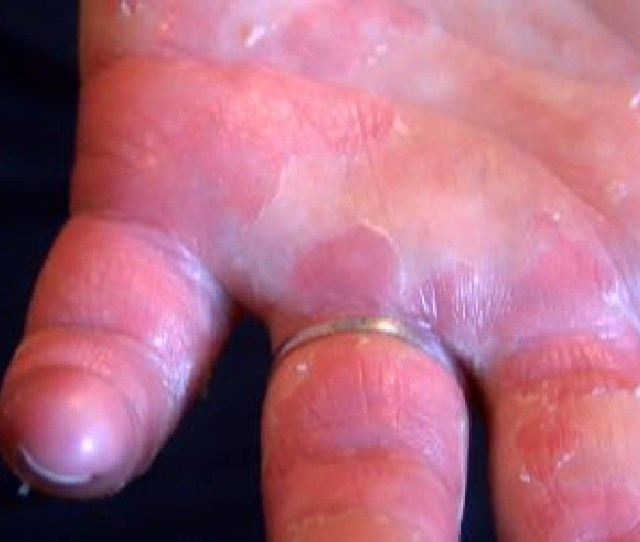 Hand Foot And Mouth Disease Comes Back To Tri Cities