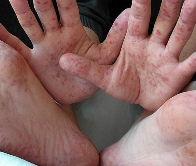Doctors Spike In Hand Foot And Mouth Disease In Middle Georgia