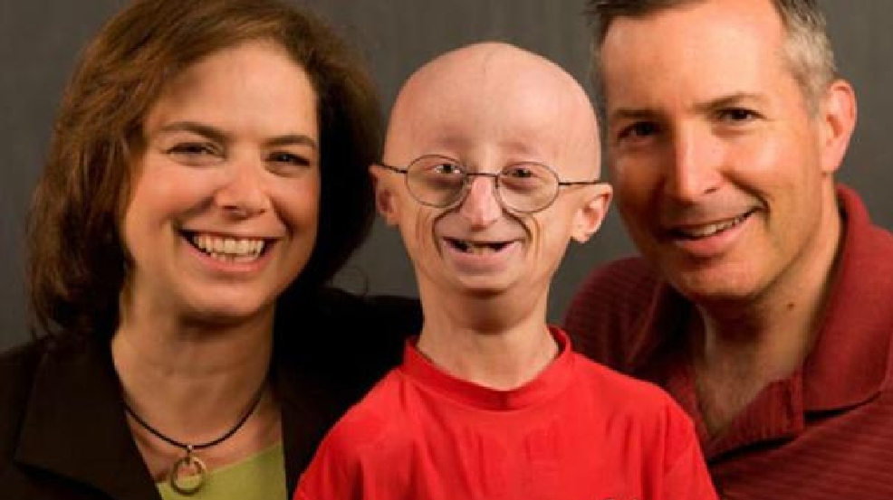 Progeria Genetic Cause