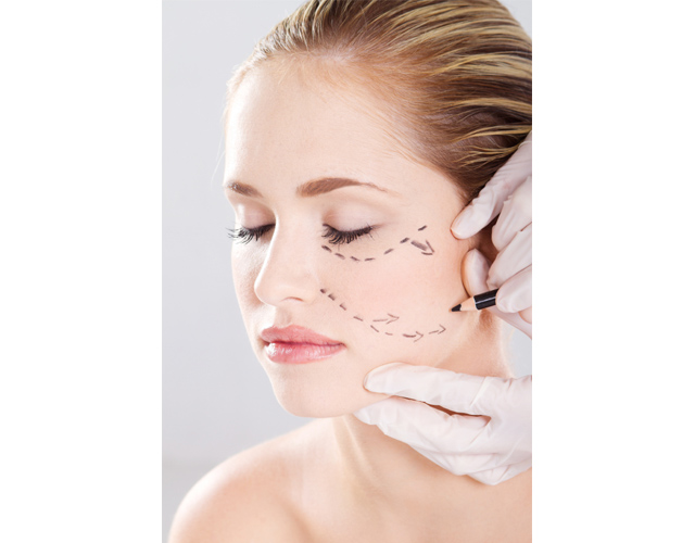 Girl getting marked on her face for face lift