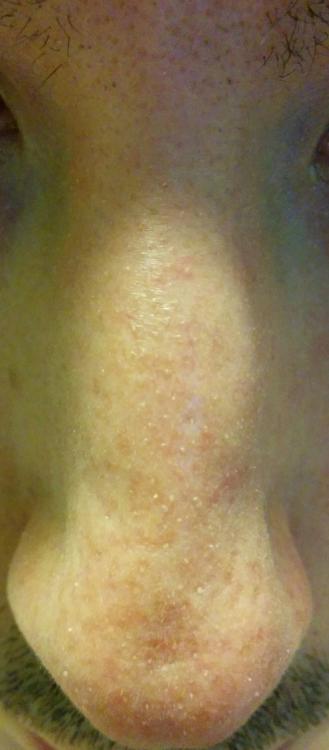 Lotus Moisturizer Sensitive Skin