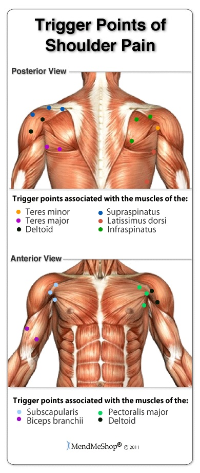 The link between trigger points and frozen shoulder