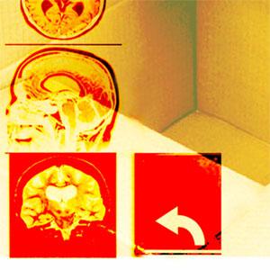 The memory virus: gene boosts memories made weeks earlier