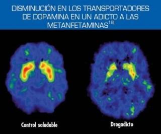 Efecto de las metanfetaminas en el cerebro