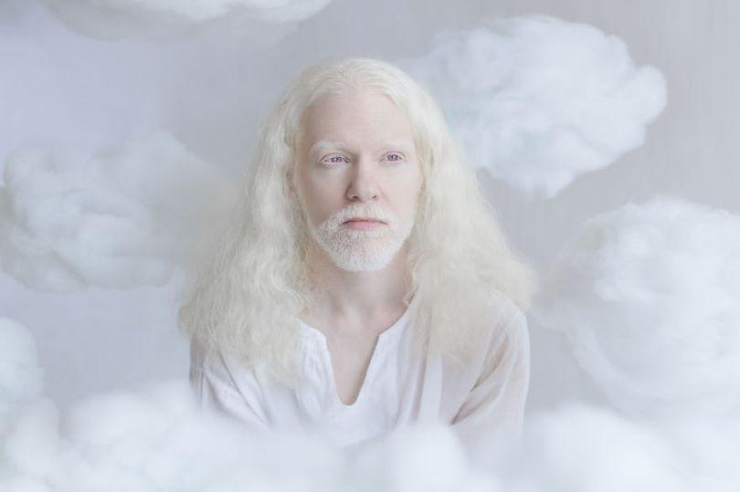 IMG 0173 s 582c43013b4fc  880 - A beleza dos albinos