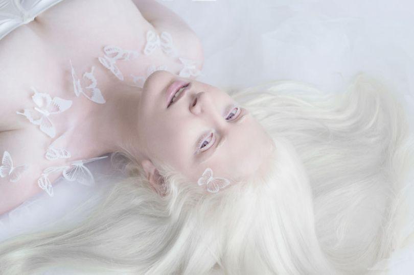 IMG 0551 s 582c43160c640  880 - A beleza dos albinos