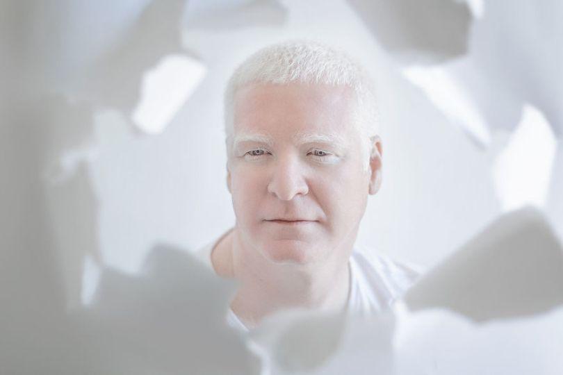 IMG 0421 s Rafael 59529f04379f6  880 - A beleza dos albinos