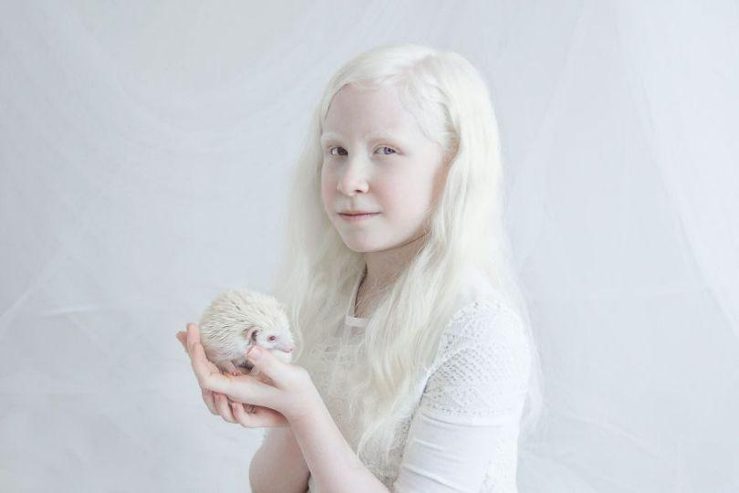 IMG 0685 s Shira 59529f2282380  880 - A beleza dos albinos