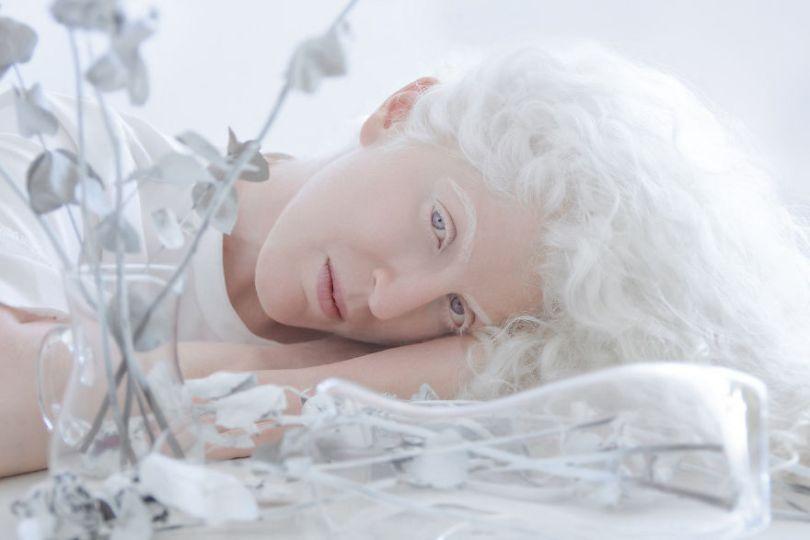 IMG 0953 s Ortal 59529f25c4e55  880 - A beleza dos albinos