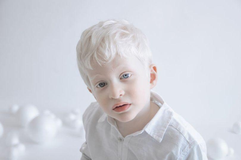 IMG 1201 s Itay 59529f32691db  880 - A beleza dos albinos