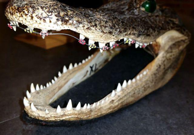 Mi ortodoncista tiene ésto en su clínica
