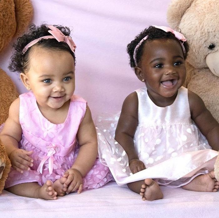 Twins with different skin colors are enchanting the internet and you will fall in love as well 5a15438626e82  700 - Meninas gêmeas que conquistaram a Internet