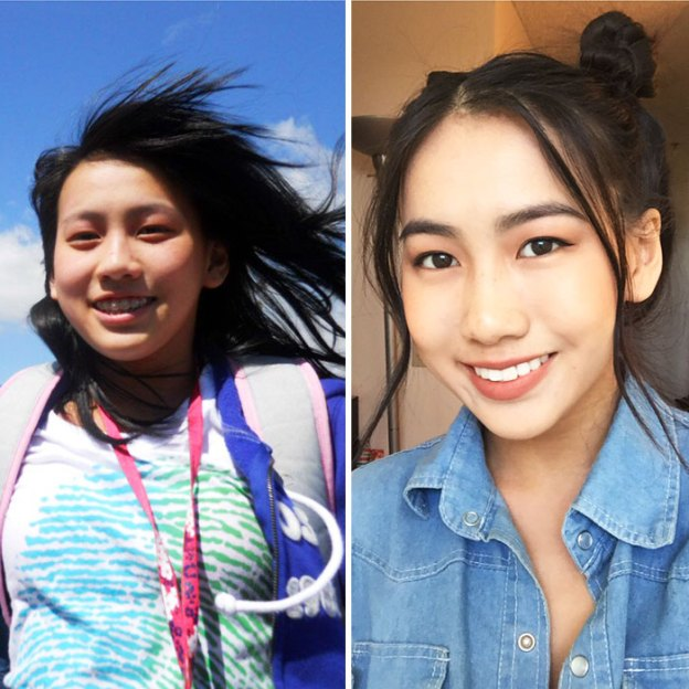 """61-5a816bb9ea566__700 People Who Used To Be """"Ugly Ducklings"""" Share Their Transformations, And We Can Barely Recognize Them (New Pics) Design Random"""