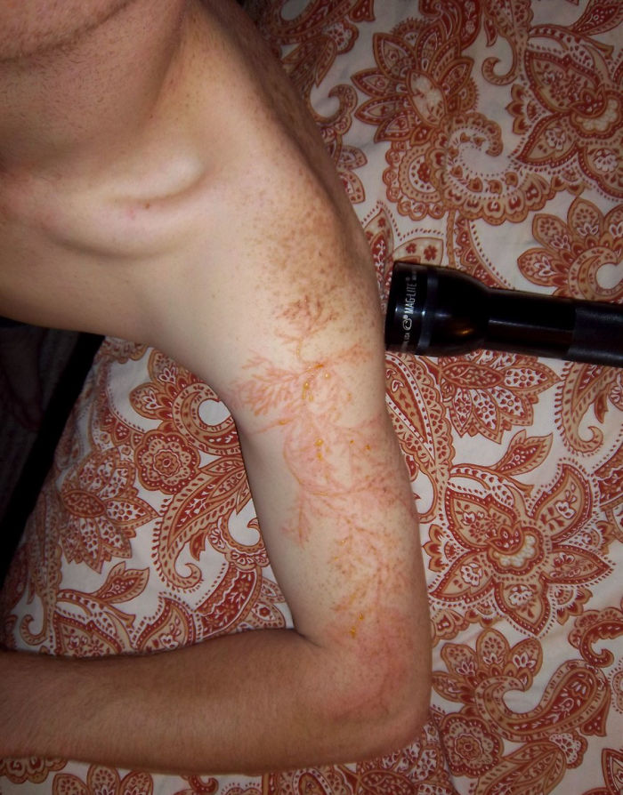 Scars-After-Surviving-Lightning-Strike-Lichtenberg-Figures-Photos-11-5b6d30e490d95__700 19 People Who Survived Getting Struck By Lightning Show What It Does To Your Skin Design Random
