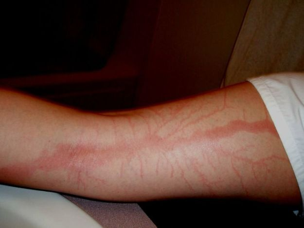 Scars-After-Surviving-Lightning-Strike-Lichtenberg-Figures-Photos-4-5b6d30d915d3d__700 19 People Who Survived Getting Struck By Lightning Show What It Does To Your Skin Design Random