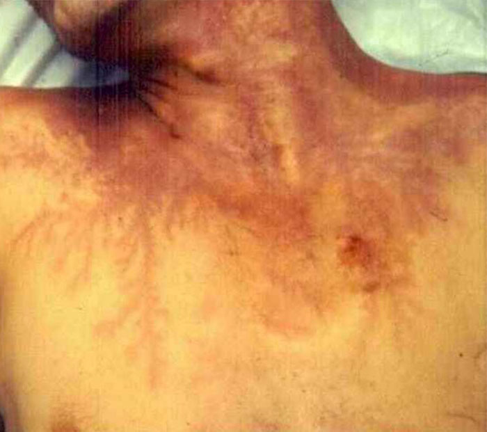 Scars-After-Surviving-Lightning-Strike-Lichtenberg-Figures-Photos-6-5b6d31659801a__700 19 People Who Survived Getting Struck By Lightning Show What It Does To Your Skin Design Random