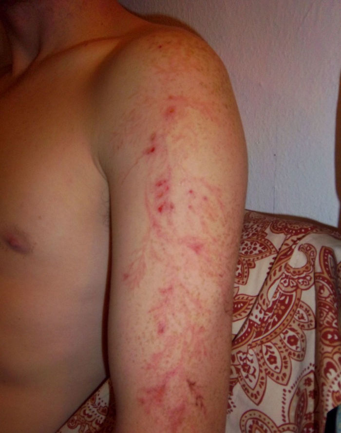 Scars-After-Surviving-Lightning-Strike-Lichtenberg-Figures-Photos-9-5b6d30e16216d__700 19 People Who Survived Getting Struck By Lightning Show What It Does To Your Skin Design Random