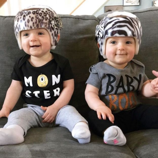 children-son-helmet-support-celebrity-chrissy-teigen-5c07cb24676e2__700 Chrissy Teigen Has Shared A Photo Of Her Son With A Head-Shaping Helmet, People From All Around The World Respond Design Random