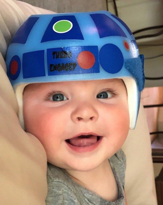 children-son-helmet-support-celebrity-chrissy-teigen-5c07cb881b2b6__700 Chrissy Teigen Has Shared A Photo Of Her Son With A Head-Shaping Helmet, People From All Around The World Respond Design Random