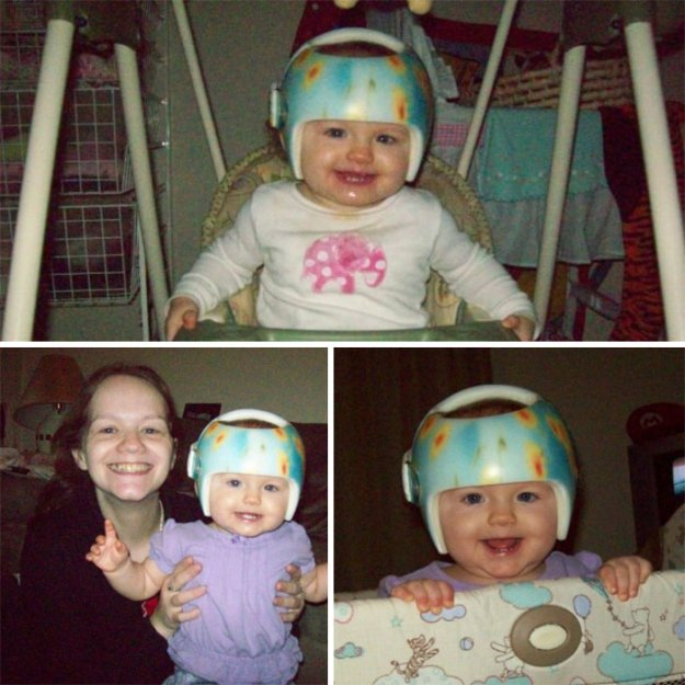 children-son-helmet-support-celebrity-chrissy-teigen-5c07cd8157aa0__700 Chrissy Teigen Has Shared A Photo Of Her Son With A Head-Shaping Helmet, People From All Around The World Respond Design Random
