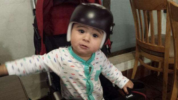 children-son-helmet-support-celebrity-chrissy-teigen-5c07cda128dfc__700 Chrissy Teigen Has Shared A Photo Of Her Son With A Head-Shaping Helmet, People From All Around The World Respond Design Random