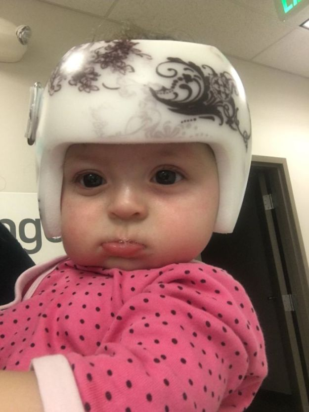 children-son-helmet-support-celebrity-chrissy-teigen-5c07ce1f78ff3__700 Chrissy Teigen Has Shared A Photo Of Her Son With A Head-Shaping Helmet, People From All Around The World Respond Design Random