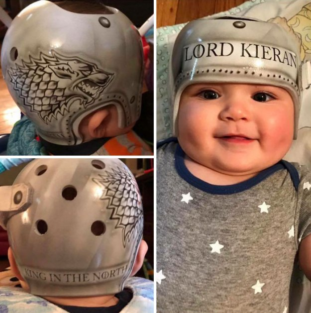 children-son-helmet-support-celebrity-chrissy-teigen-5c07d00227731__700 Chrissy Teigen Has Shared A Photo Of Her Son With A Head-Shaping Helmet, People From All Around The World Respond Design Random