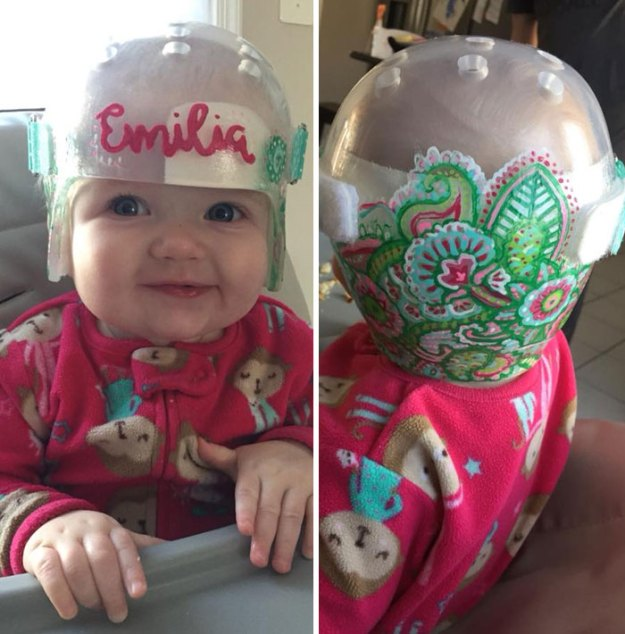 children-son-helmet-support-celebrity-chrissy-teigen-5c07d49018c45__700 Chrissy Teigen Has Shared A Photo Of Her Son With A Head-Shaping Helmet, People From All Around The World Respond Design Random