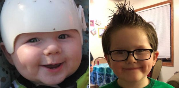children-son-helmet-support-celebrity-chrissy-teigen-5c07d53e7d9dc__700 Chrissy Teigen Has Shared A Photo Of Her Son With A Head-Shaping Helmet, People From All Around The World Respond Design Random