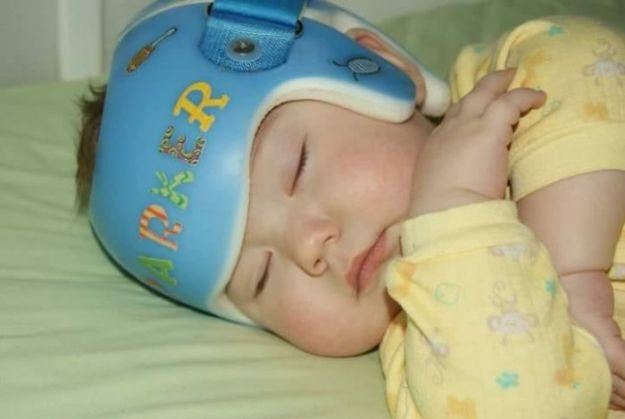 children-son-helmet-support-celebrity-chrissy-teigen-5c07d7c859dd5__700 Chrissy Teigen Has Shared A Photo Of Her Son With A Head-Shaping Helmet, People From All Around The World Respond Design Random