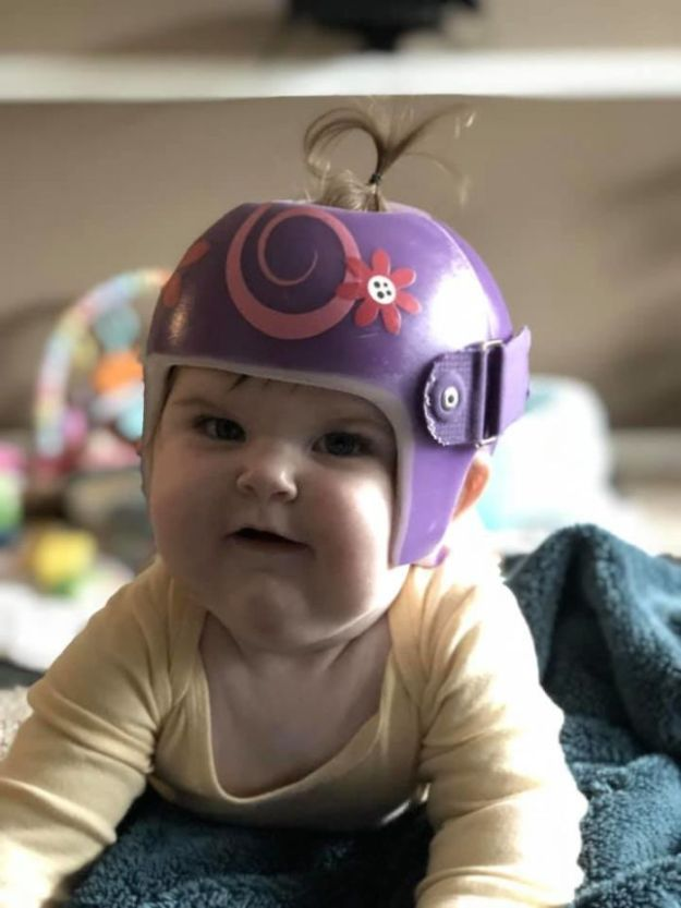 children-son-helmet-support-celebrity-chrissy-teigen-5c07d8364be52__700 Chrissy Teigen Has Shared A Photo Of Her Son With A Head-Shaping Helmet, People From All Around The World Respond Design Random